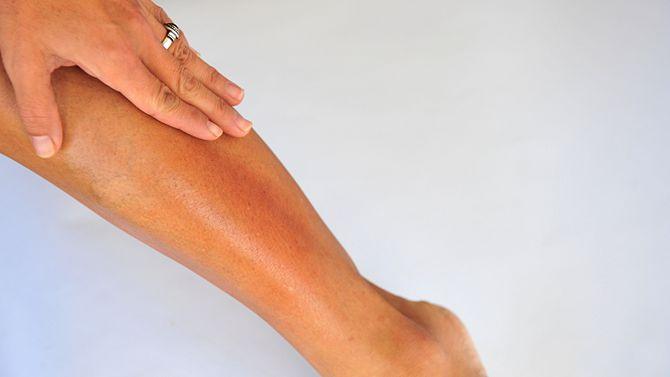 670px-Heal-Dry-Skin-on-Legs-Step-6