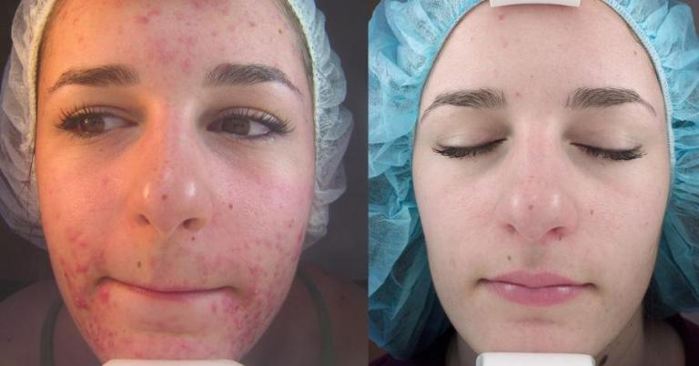 acne-scars-before-and-after-chemical-peel-315