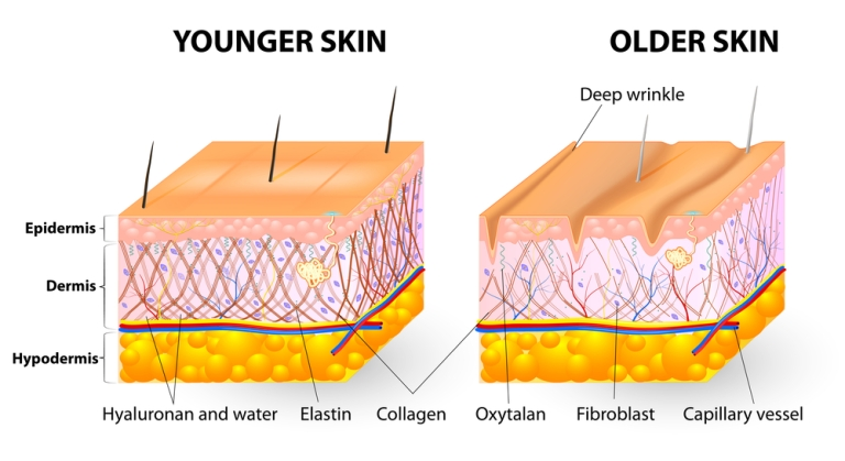 collagen-hyaluronic-acid