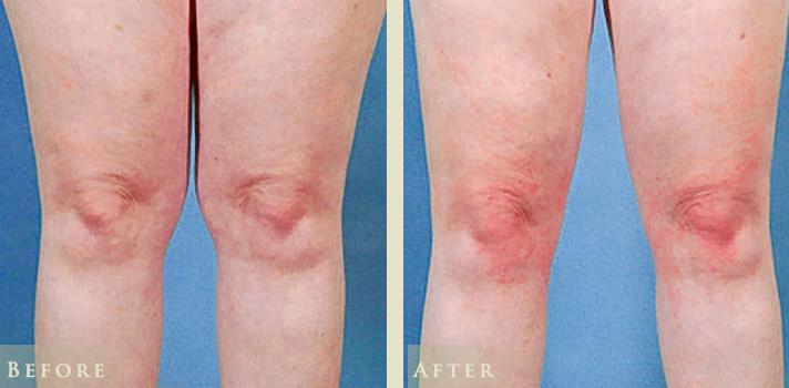 liposuction-cc-knees-front