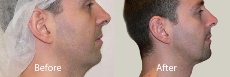liposuction-neck-toronto-cosmetic-surgeon