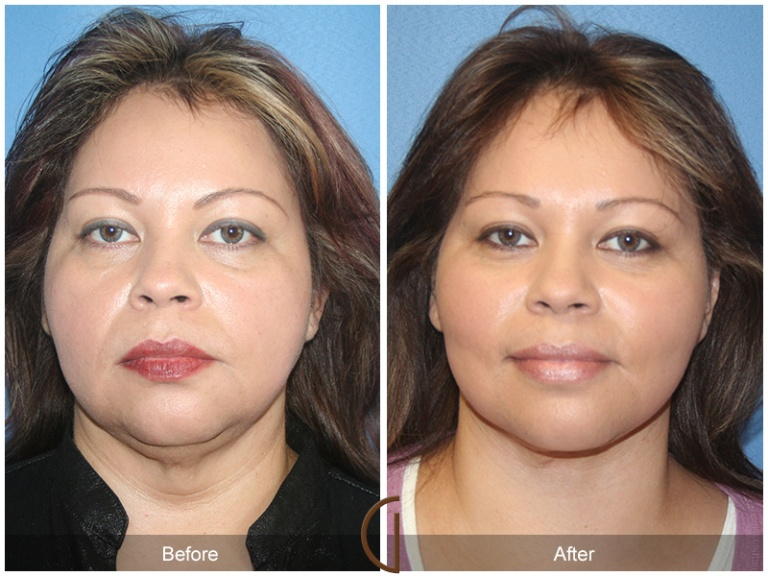 Orange-County-Face-and-Neck-Liposuction